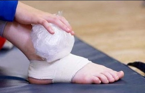 Bong gân – Làm sao để sơ cứu đúng cách, tránh ảnh hưởng chức năng xương khớp? - Ảnh 2.
