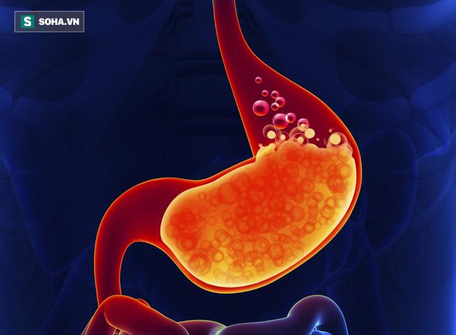 TS Mỹ bật mí 6 cách giảm ợ nóng và trào ngược dạ dày, từ đó ngăn ngừa ung thư  - Ảnh 1.