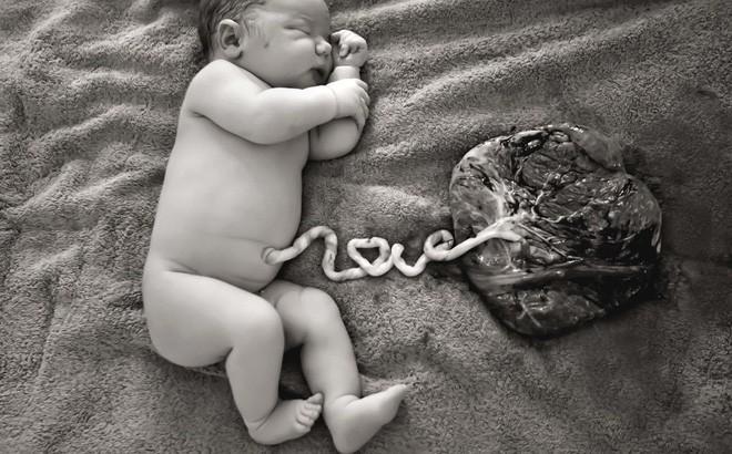 Bộ Y tế để nghị xử lý thông tin thất thiệt vụ 2 mẹ con tử vong do sinh thuận tự nhiên - Ảnh 1.