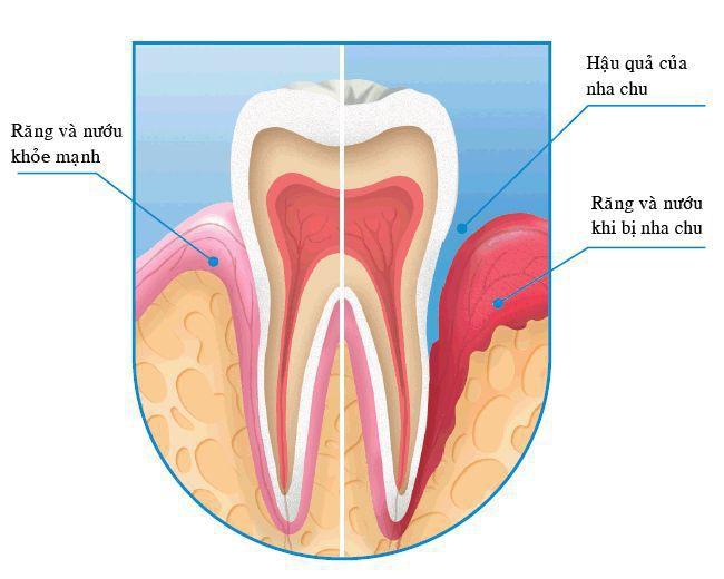 Phương pháp chữa sâu răng 100% tự nhiên rất dễ áp dụng tại nhà  - Ảnh 3.