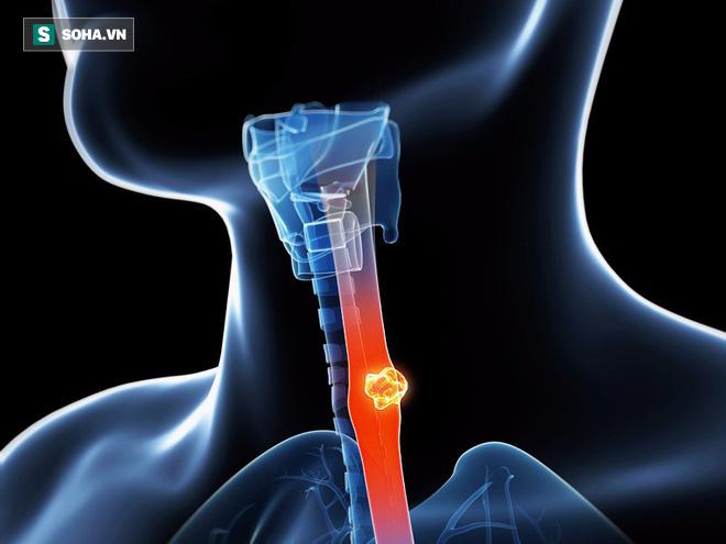 Ung thư thực quản gây đau đớn và khó điều trị, muốn phòng bệnh phải làm tốt 5 việc - Ảnh 1.