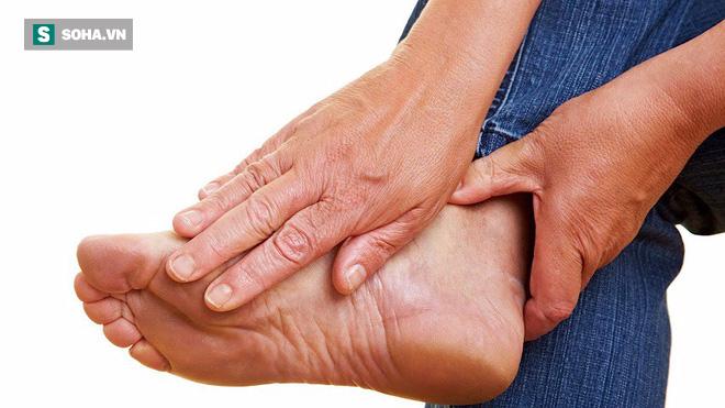 Bác sĩ cảnh báo 4 dấu hiệu sớm của bệnh cục máu đông - thủ phạm chính gây đột quỵ, đột tử - Ảnh 4.