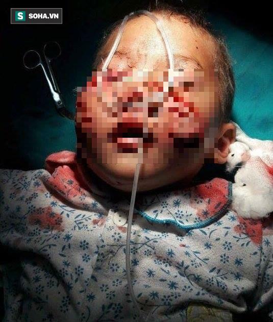 Thương tâm bé trai 3 tuổi bị chó cắn nát mặt khi sang nhà chú chơi - Ảnh 1.