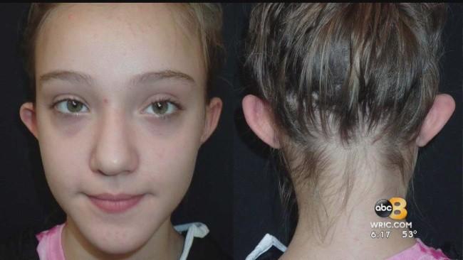 Ở trường con gái bị bắt nạt thậm tệ, mẹ quyết định cho con phẫu thuật thẩm mỹ - Ảnh 1.