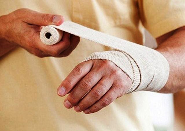 Sơ cứu bỏng đúng cách, tránh bị bỏng rát nhiều kèm sẹo xấu sau khi vết thương lành lặn - Ảnh 3.