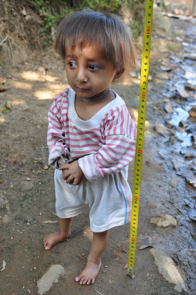 TIN TỐT LÀNH 02/04: Cậu bé tí hon 10 tuổi 3,9kg - Cô hàng cơm giá nào cũng bán & Cô hàng thịt lợn mắc mùng bán hàng - Ảnh 1.
