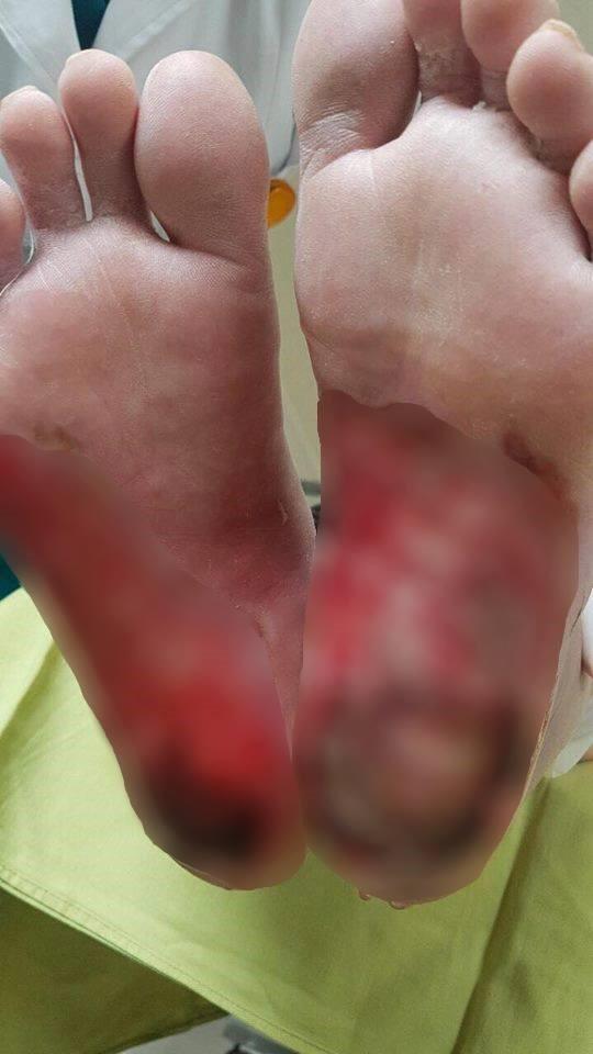 Liên tiếp có bệnh nhân tiểu đường nhập viện vì bỏng nặng do dùng đèn sưởi đá muối - Ảnh 2.