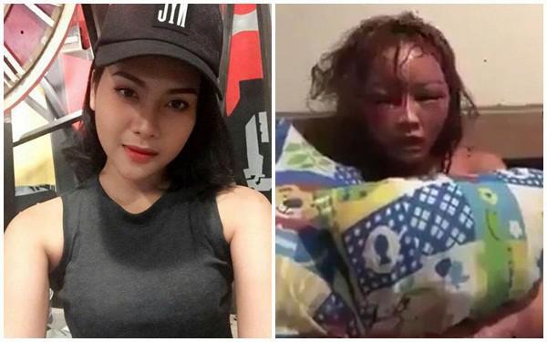 Thái Lan: Cô gái bị bạn trai cuồng ghen livetream cảnh đánh đập, đốt tóc đến biến dạng mặt - Ảnh 1.