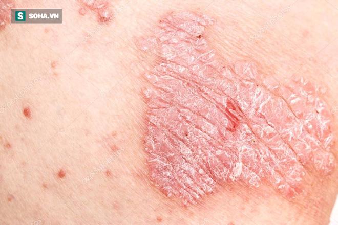Bệnh vẩy nến có phải là vô phương cứu chữa: Hãy làm theo lời khuyên của chuyên gia da liễu - Ảnh 2.