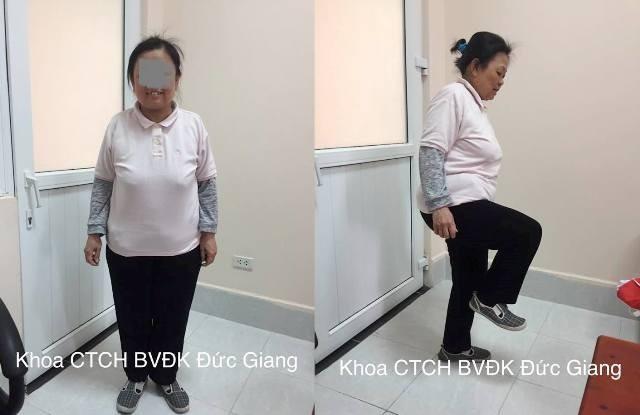 Cụ bà tự ý dùng thuốc corticoid suốt 20 năm khiến mặt tích nước, loãng xương - Ảnh 2.