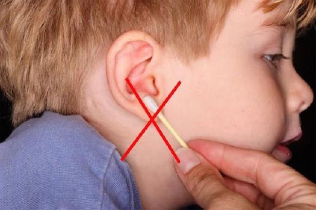 Bác sĩ lấy ra cục ráy tai 9 năm từ tai bé gái, người mẹ bàng hoàng nhận ra sai lầm khi con mới 2 tuổi - Ảnh 4.