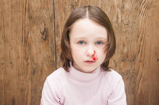 Để chảy máu cam chấm dứt không phải ngửa đầu ra sau, đây mới là cách sơ cứu đúng! - Ảnh 4.