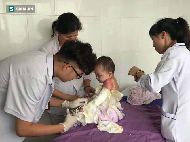 Quảng Ninh: Thương tâm em bé 4 tuổi bị bỏng nặng do ngã vào chậu nước sôi - Ảnh 1.