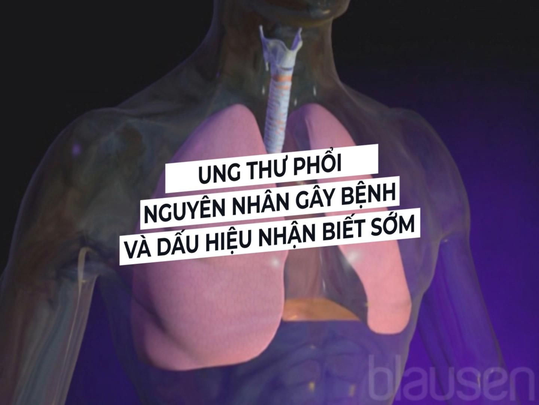 Ung thư phổi: Nguyên nhân gây bệnh và dấu hiệu nhận biết sớm