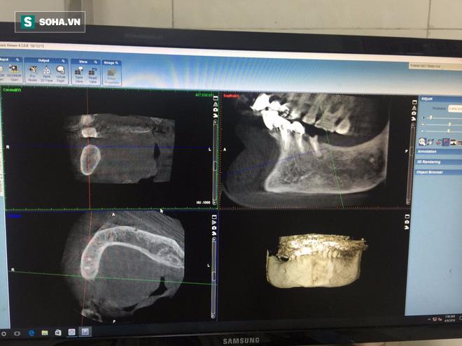 Hiếm có khó tìm: Cụ bà ở Vĩnh Phúc 91 tuổi vẫn đi cấy ghép răng để... ăn cho ngon miệng - Ảnh 2.