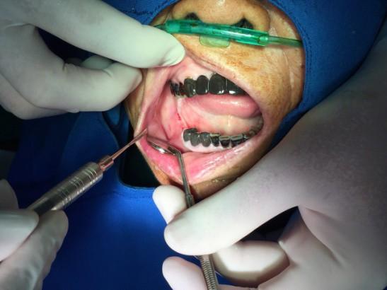 Hiếm có khó tìm: Cụ bà ở Vĩnh Phúc 91 tuổi vẫn đi cấy ghép răng để... ăn cho ngon miệng - Ảnh 4.