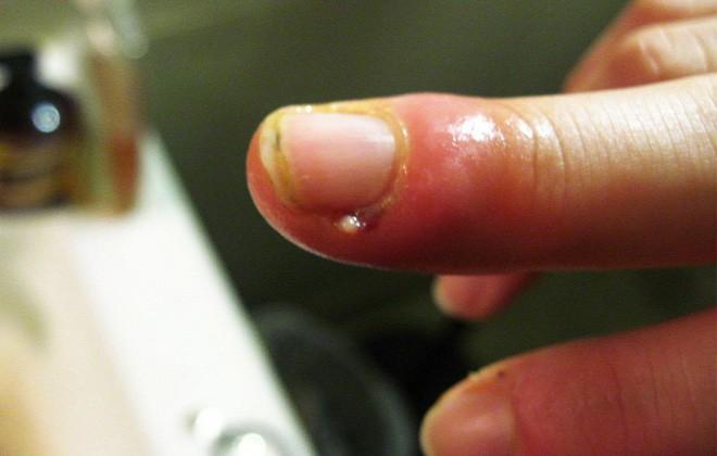 Cách xử lý xước măng rô không gây hại mà bất kì ai cũng phải biết nếu không sẽ rất hối tiếc - Ảnh 1.