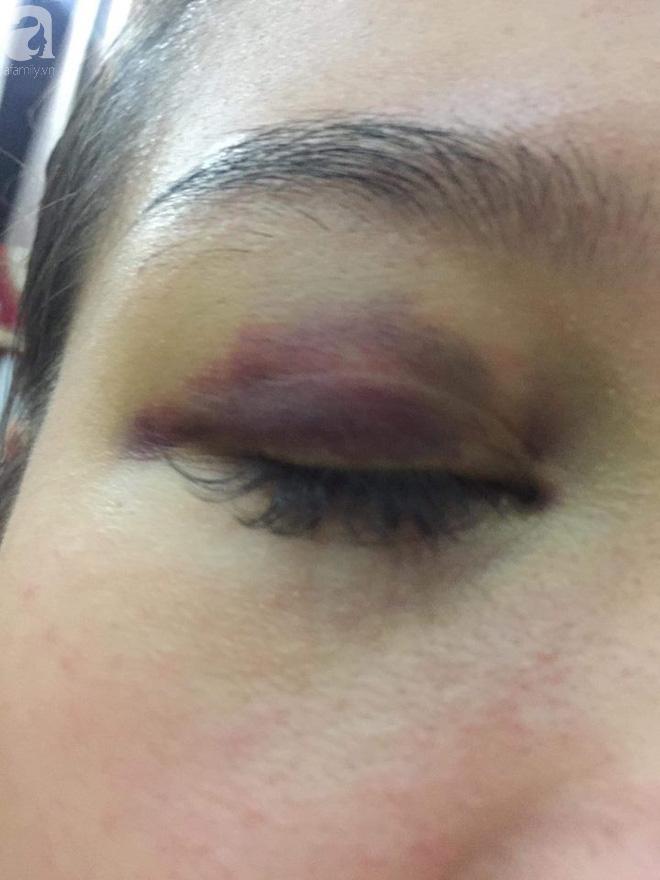 Bạn thân của cô gái bị bạn trai ngoại quốc đánh đập, tung clip nóng lên mạng: Mới hơn 4 tháng, L. đã bị bạn trai bạo hành 12 lần - Ảnh 3.