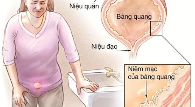 7 dấu hiệu cảnh báo bạn cần phải đi khám bàng quang trước khi quá muộn - Ảnh 1.