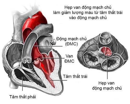 Ca mổ hy hữu tại BV Bạch Mai: 5 khoa phối hợp cứu sản phụ bệnh tim có khối u to hơn em bé - Ảnh 1.