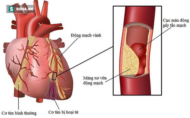 Chuyên gia cảnh báo: Mắc tiểu đường phải đề phòng cái chết bất ngờ do biến chứng tim mạch - Ảnh 1.