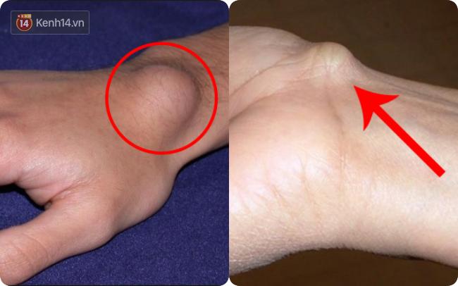 Xuất hiện cục u nổi bất thường ở cổ tay: Đừng bỏ qua vì đó có thể là dấu hiệu cảnh báo bệnh nguy hiểm - Ảnh 1.