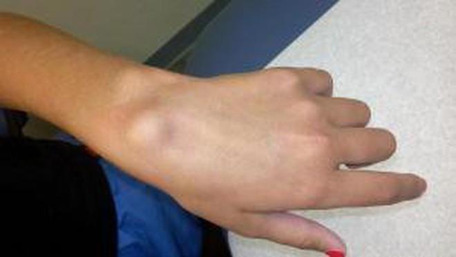 Xuất hiện cục u nổi bất thường ở cổ tay: Đừng bỏ qua vì đó có thể là dấu hiệu cảnh báo bệnh nguy hiểm - Ảnh 3.