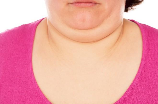 10 dấu hiệu cho thấy tuyến giáp của bạn không được khỏe mạnh và bạn cần đi khám ngay - Ảnh 9.