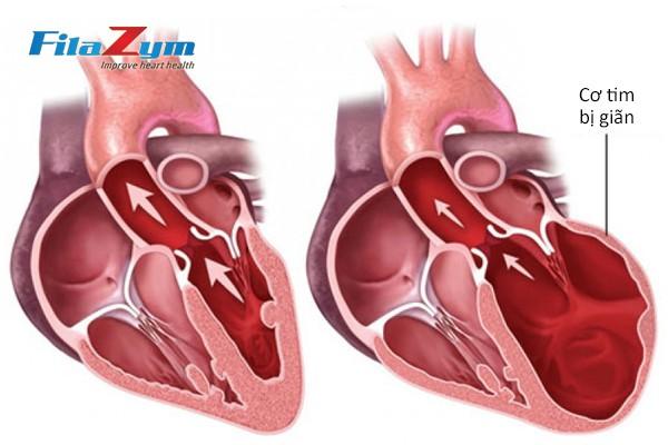Các dấu hiệu tố bệnh tim bạn không nên bỏ qua - Ảnh 1.