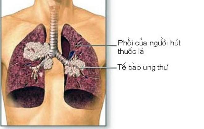 Ung thư phổi là bệnh có tiên lượng xấu: Chuyên gia chỉ rõ những dấu hiệu của bệnh - Ảnh 2.