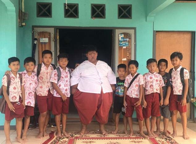 Hậu phẫu thuật thành công, cậu bé nặng nhất thế giới giảm gần nửa số cân, có cuộc sống bình thường - Ảnh 1.