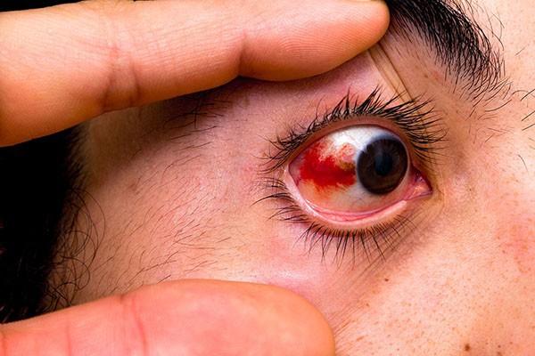"""Sơ cứu đúng cách khi bị bọ xít """"đái"""" vào mắt, tránh biến chứng nguy cơ mù lòa - Ảnh 4."""
