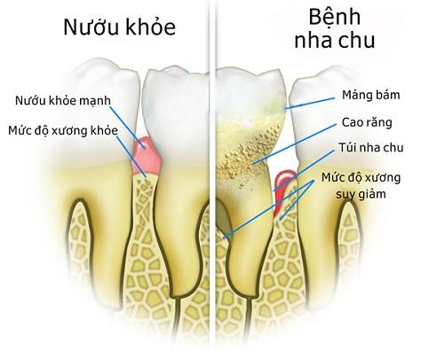 Đề cao cảnh giác với ung thư và bệnh tim nếu răng miệng xuất hiện những dấu hiệu này - Ảnh 3.
