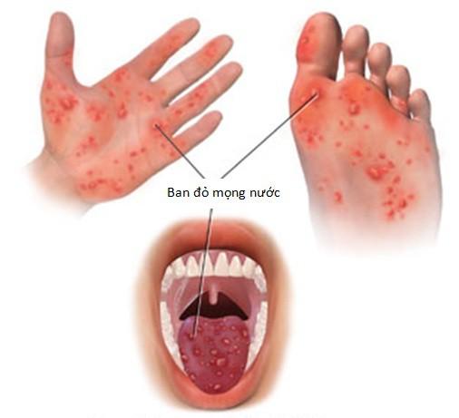 6 bệnh ngoài da hay gặp ở trẻ mùa nắng nóng - Ảnh 2.