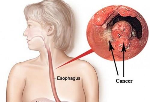Cách phân biệt giữa viêm họng và ung thư thực quản: Nhầm lẫn sẽ đánh mất cơ hội chữa bệnh - Ảnh 1.