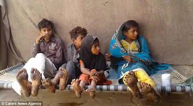 4 đứa trẻ trong một nhà hóa đá vì bệnh da hiếm gặp - Ảnh 1.