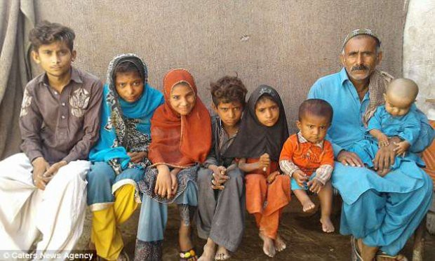 4 đứa trẻ trong một nhà hóa đá vì bệnh da hiếm gặp - Ảnh 2.