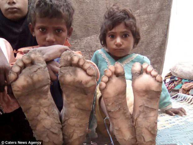 4 đứa trẻ trong một nhà hóa đá vì bệnh da hiếm gặp - Ảnh 5.