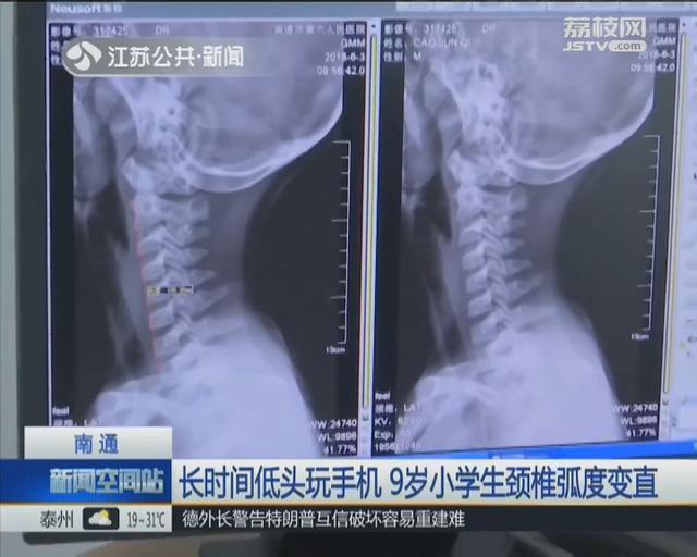 Cảnh báo: Bé 9 tuổi biến dạng xương cổ do xem điện thoại, cha mẹ phát hiện thì đã quá muộn - Ảnh 1.