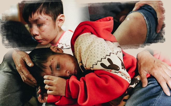 Cuộc sống của bé trai 10 tuổi bị bố và mẹ kế bạo hành đến rạn sọ não ở Hà Nội giờ ra sao? - Ảnh 1.