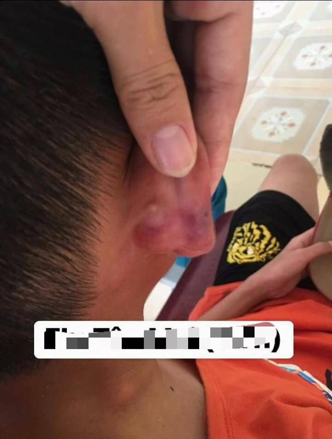 Nghệ An: Nghi án bé trai 12 tuổi bị mẹ kế đánh thương tích đầy mình phải nhập viện - Ảnh 3.