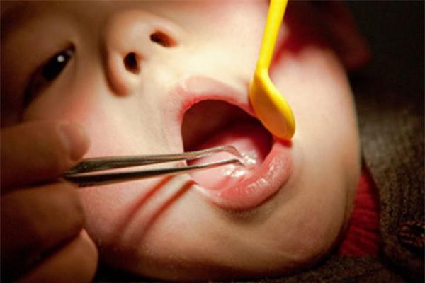 Cháu bé ở Quảng Ninh hóc dị vật khó tin: Lò xo có 2 đầu sắc nhọn đang han gỉ - Ảnh 1.