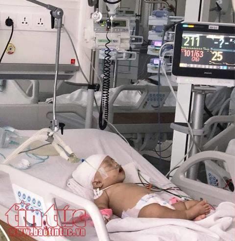 Bé gái 14 tháng tuổi bị khỉ cắn rách đầu - Ảnh 1.