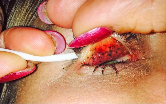 Mọc hàng chục u nhỏ trong mắt vì… lười tẩy trang - Ảnh 1.