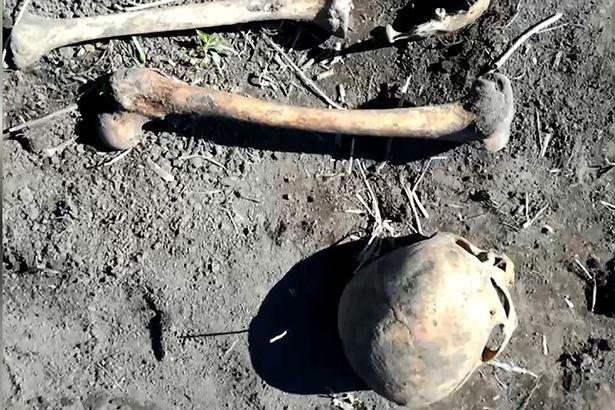 Đào được hộp sọ trong vườn, người đàn ông phát hiện sự thật kinh hoàng - Ảnh 3.