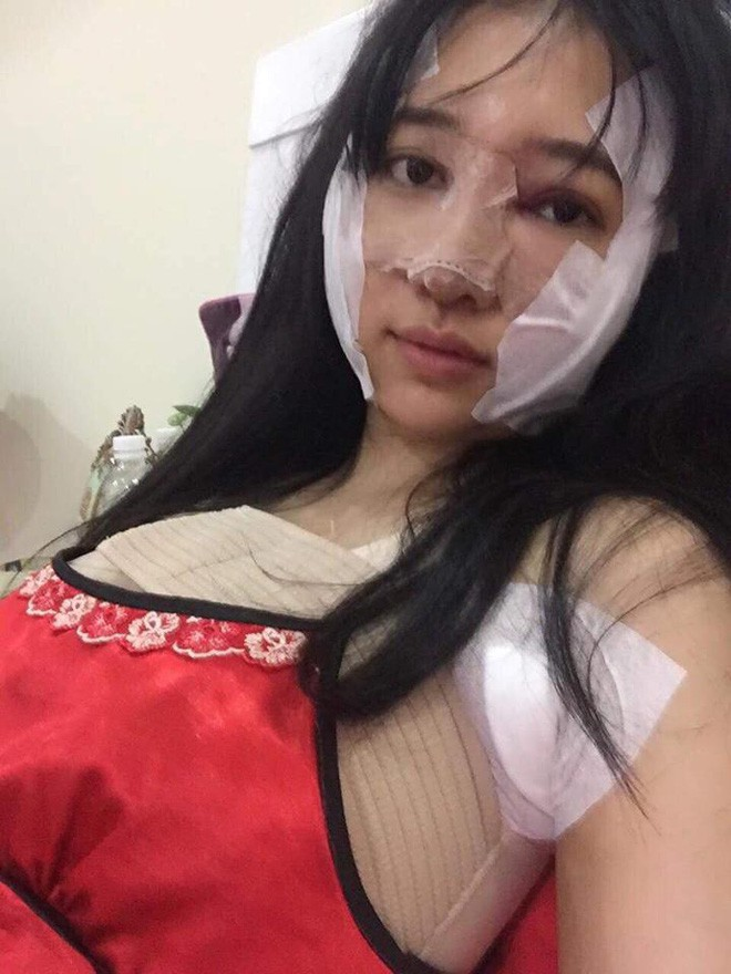 Sau khi chi 200 triệu nâng ngực, nâng mũi, sửa mặt, nhan sắc chị gái Sài Gòn tuổi 33 khiến các em 20 phải chạy dài - Ảnh 5.