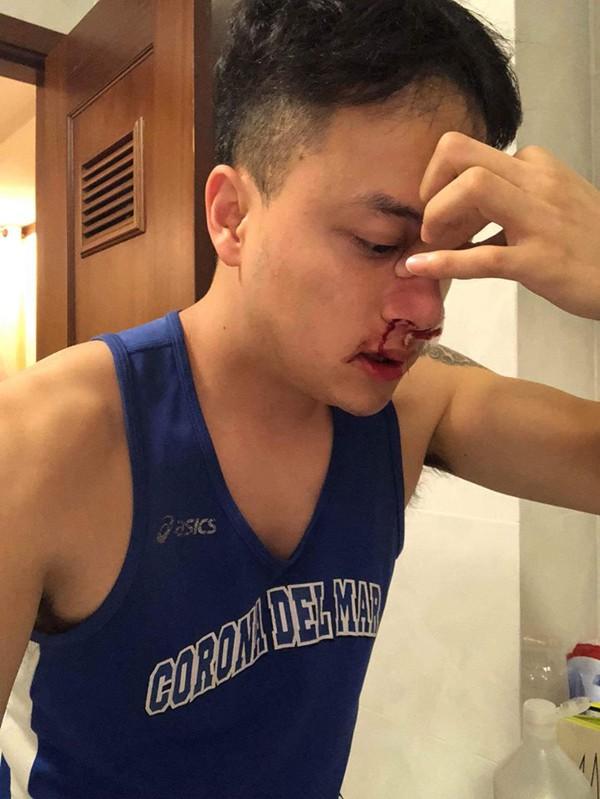 Cao Thái Sơn cấp cứu lúc nửa đêm vì chảy máu mũi liên tục và bất thường - Ảnh 2.
