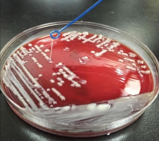 Loại khuẩn gây chết người trong 1 ngày này có thể bùng nổ khi cơn ác mộng kháng kháng sinh ập đến - Ảnh 1.