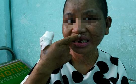 Rùng mình chứng kiến những vết thương của cô gái bị bà chủ tra tấn dã man