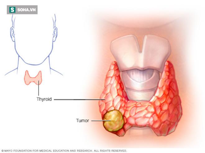 6 dấu hiệu sớm nhất của ung thư tuyến giáp: Cơ hội sống gần 100% nếu điều trị kịp thời - Ảnh 1.